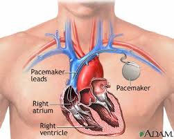 Permanent Pacemaker Implantation